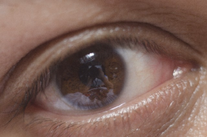 目の画像:目からウロコの耳寄り情報局