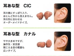 耳あな型補聴器の画像:目からうろこの耳寄り情報局